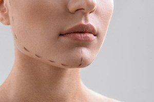 Image de l'opération de chirurgie esthétique de génioplastie ou mentoplastie ou chirurgie du menton : avant et après