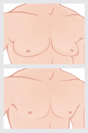 Image de l'opération de chirurgie esthétique de gynécomastie: avant et après