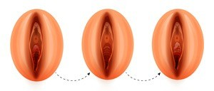 Image de l'opération de chirurgie esthétique de l'hyménoplastie: avant et après