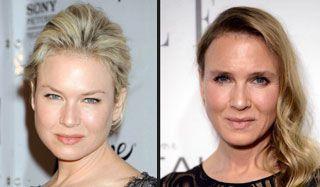 Bridget Jones et le botox