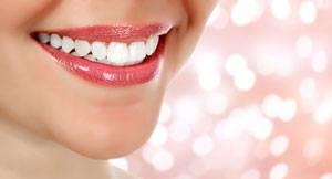 Facettes Dentaires : Tout ce qu'il faut savoir !