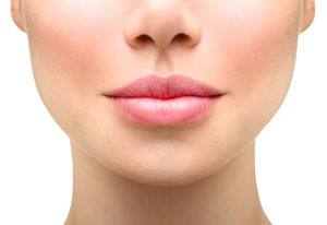 Les injections pour les lèvres