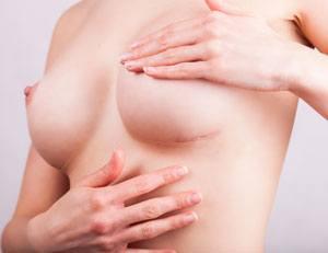 Opération de chirurgie esthétique de Mastopexie : avant et après
