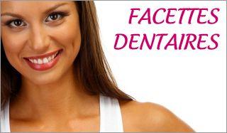 Les facettes dentaires, la solution pour un sourire neuf !